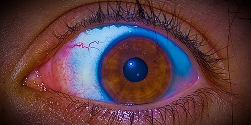 Eye-on-Reality