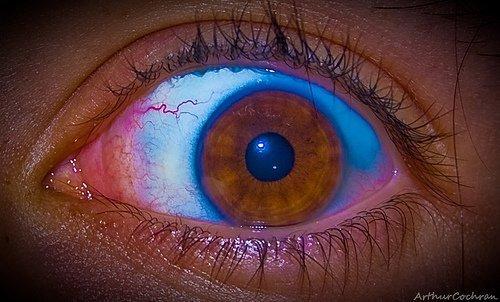Eye on Reality